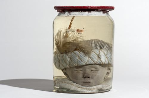 Vloeistofpreparaat van een kinderhoofd
