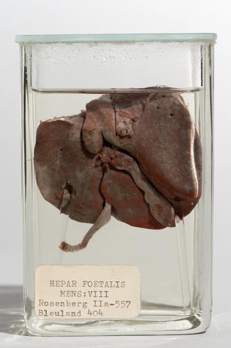 Vloeistofpreparaat van de lever