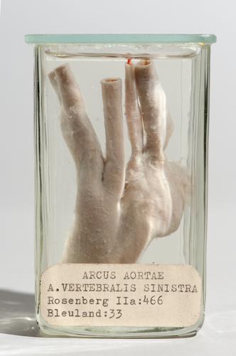 Vloeistofpreparaat van de aortaboog