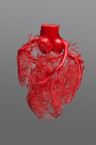 Corrosiepreparaat van de kransslagaderen van een menselijk hart