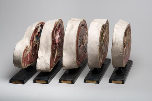 Serie van vijf modellen van de topografische transversale anatomie