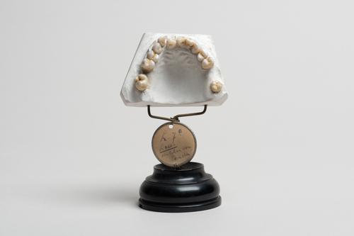 Hutchinson tanden