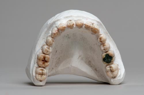 Gipsmodel van een onderkaak met getrokken tanden en kiezen aangetast door bakkerscaries
