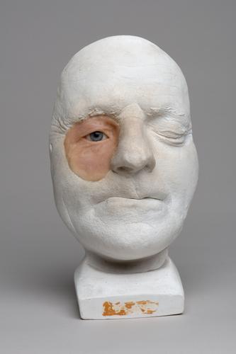 Gipsafgietsel van het gelaat van een man met een oogprothese