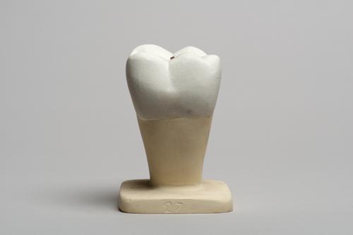 Gipsmodel van een molaar