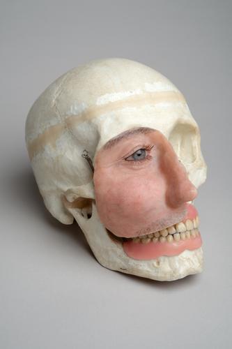 Schedel met prothese