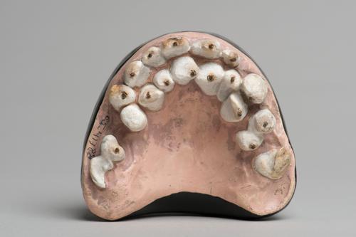 Dentitio tertia
