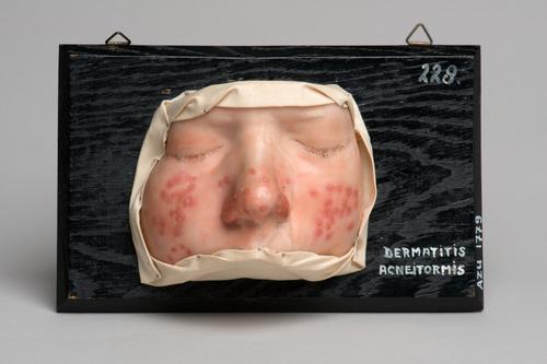 Moulage van een gezicht met dermatitis acneïformis