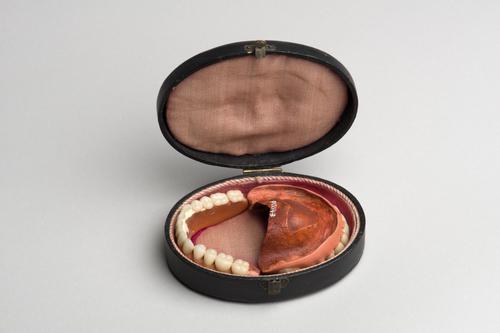 Volledige prothese van caoutchouc met porseleinen elementen