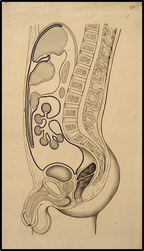 Organen - Peritoneum Doorsnede