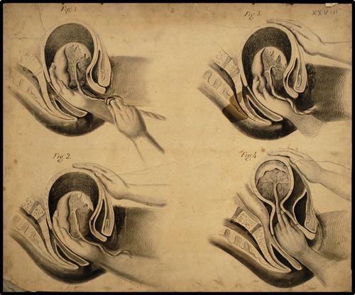 Manueel verwijderen placenta