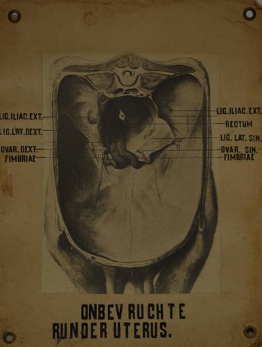 Onbevruchte runderuterus