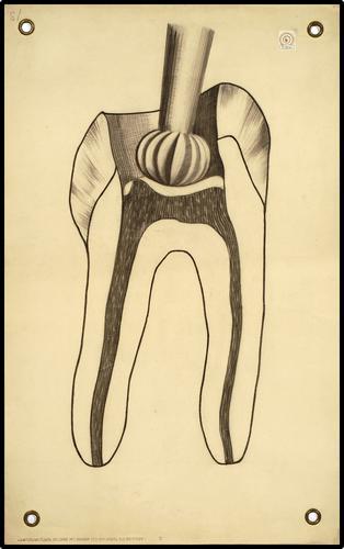 Onderwijsplaat tandheelkunde