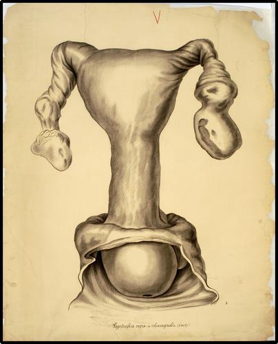 Hypertrophia supra- en intravaginalis (Courty)