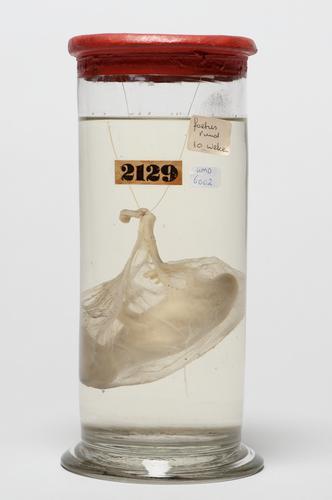 Vloeistofpreparaat van een runderfoetus