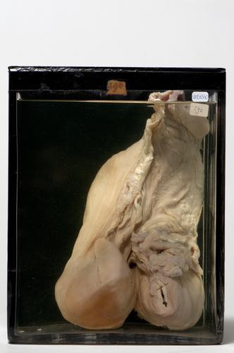 Vloeistofpreparaat van een uterus met gemacereerde vrucht