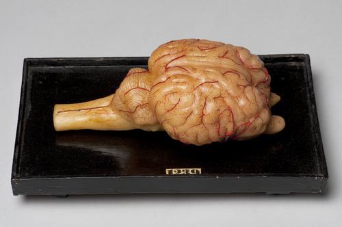 Wasmodel van de hersenen