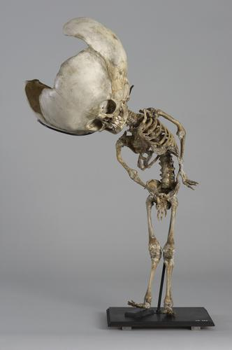 Skelet van een kind met een waterhoofd
