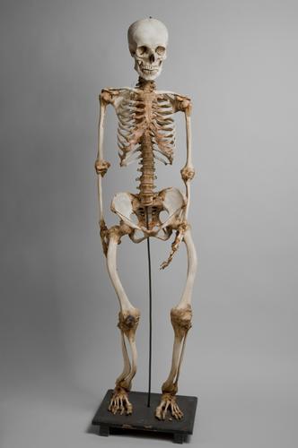 Skelet van een man met Engelse ziekte