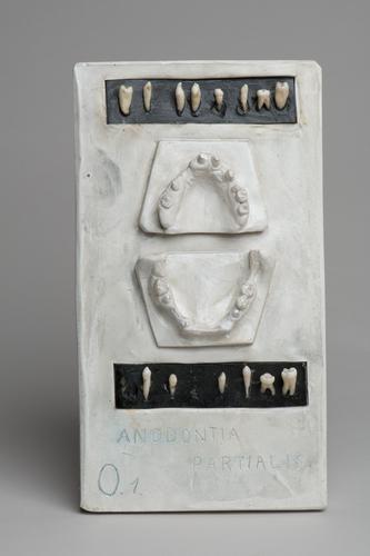 Anodontia Partialis