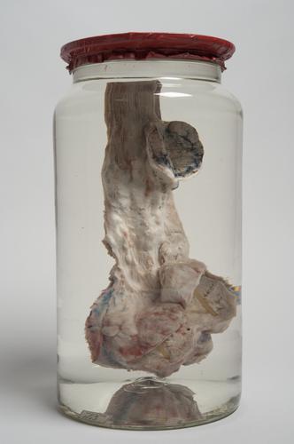 Vloeistofpreparaat van een kwaadaardig gezwel in een slokdarm