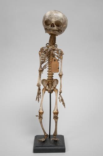 Skelet van een pasgeborene